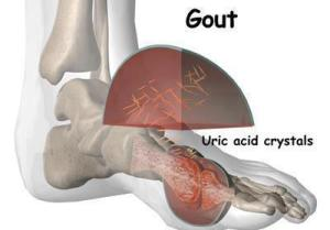 gout-uric-acid